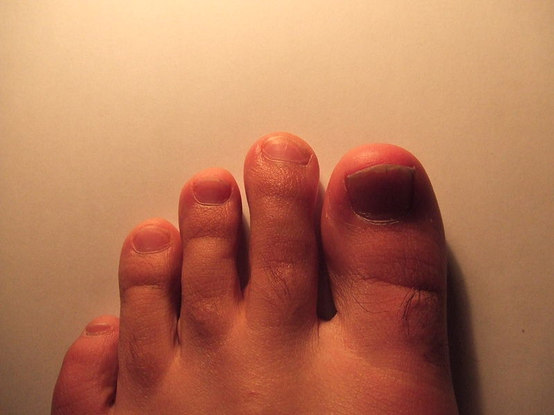File:Mortons toe.JPG